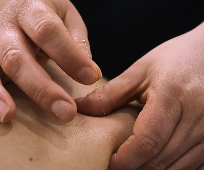 Dry needling being performed on a person's skin.