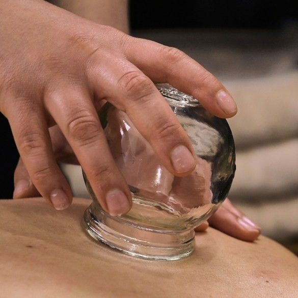 Osteopath performing cupping therapy on a person in Coburg.